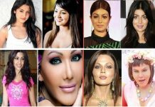 horrible cosmetic surgery